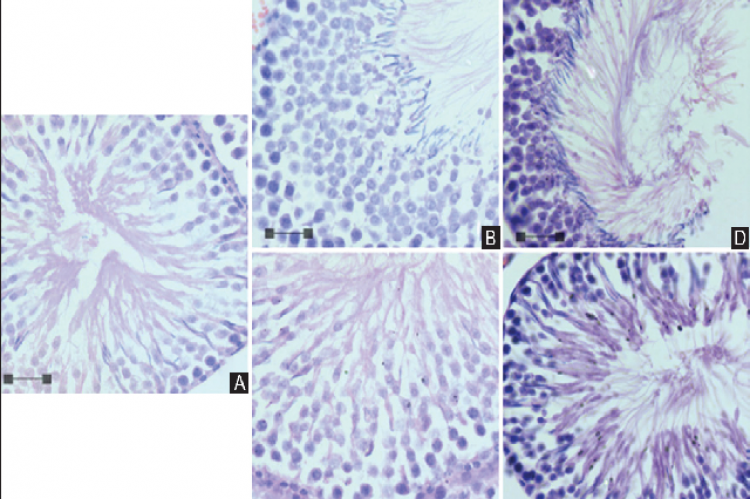 Effects of Newtonia hildebrandtii extracts on Wistar rats' seminiferous architecture.