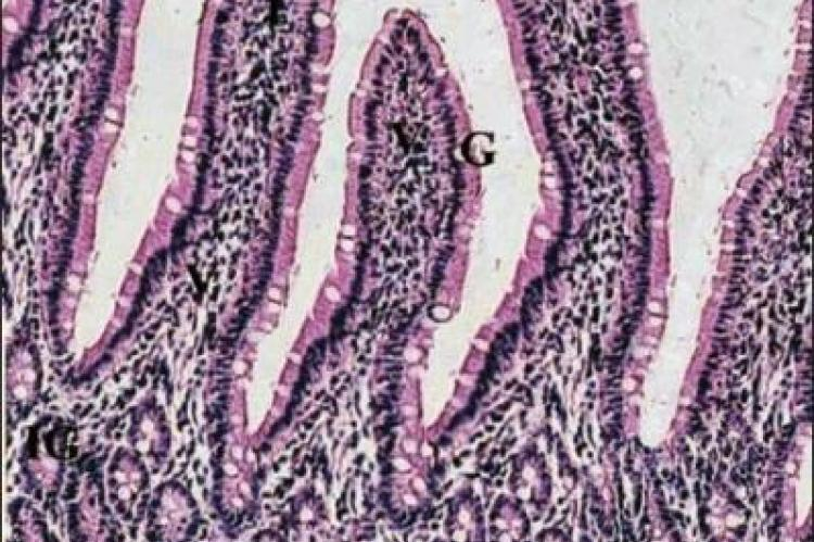 A photomicrograph of the control group of normal ileum mucosa showing its characteristic layers
