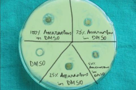 Antibacterial assey of plant extract of Amaranthus viridis against Streptococcus mutans